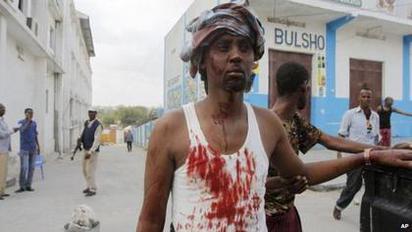 【華視搶先報】索馬利亞飯店遭恐怖攻擊 至少10人死亡 |