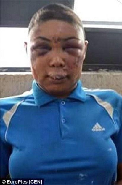 巴西變性人 遭警察爆打成豬頭引爭議 | 波莉娜被打得面目全非