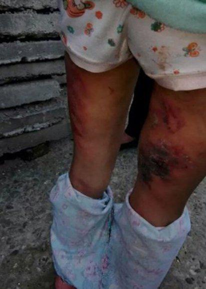 狠父毒後母毆打女童! 手指滴血逃魔爪 | 女童腿上都是遭虐的傷痕