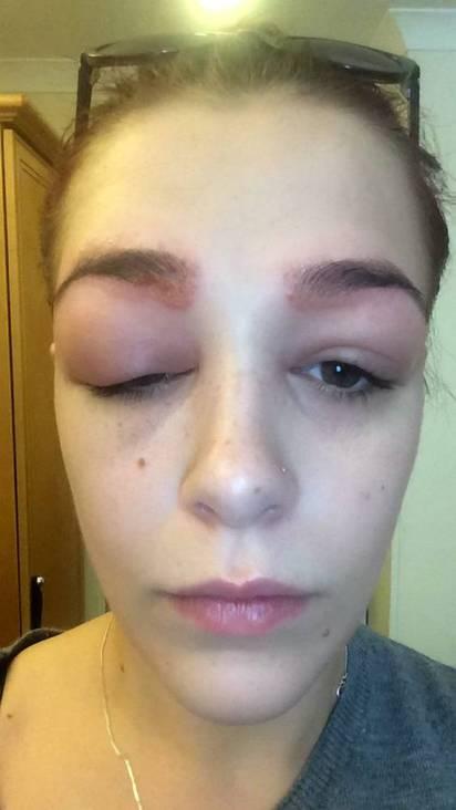 正妹染眉GG了! 眼睛腫成超大麵龜  