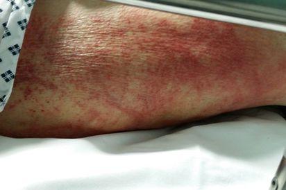 惡看護!老婦被自己的尿燒傷死亡   格林皮膚遭到阿摩尼亞燒傷