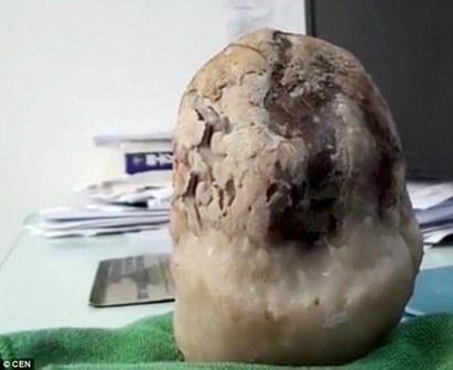 驚! 胃痛兩個月 竟發現腹中有上萬顆...   大陸婦人體內取出14公分高的巨大結石