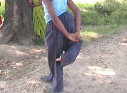 天生4條腿被笑「魔鬼化身」他不放棄想當老師   印度男子天生有4條腿 不管坐著或躺著都相當困難
