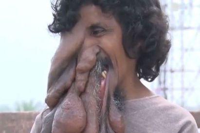 男臉長巨瘤 流浪街頭被當「象神」轉世 |