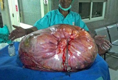 慎入! 印度婦割除97公斤驚人卵巢瘤   腫瘤大約有97公斤