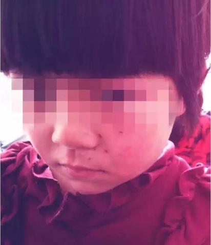 「10+9」算不出來 女童遭老師用筆插臉 | 女童臉上有明顯傷痕