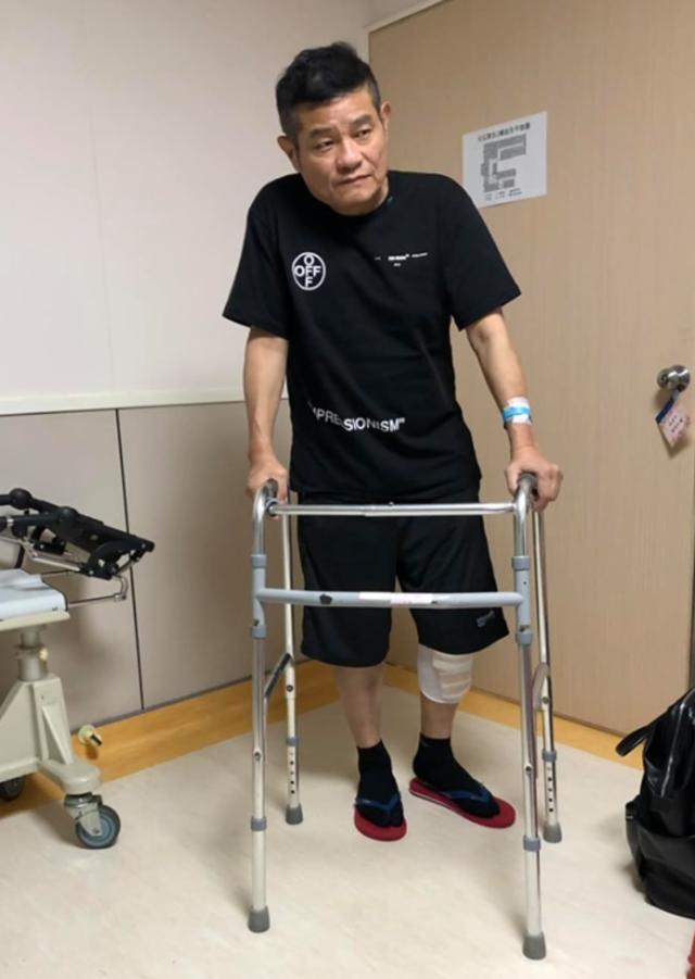 效舜近年受膝蓋退化性關節炎所苦,14日進行左膝手術。(翻攝臉書許效舜的筍絲團)
