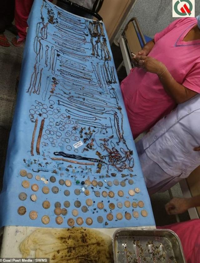 女子罹患異食症吞了195個飾品。(翻攝自SWNS)