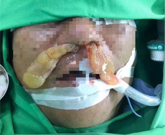 慎入!遊歐失去嗅覺憂染武肺 竟是超大息肉惹禍   該病患的息肉塞滿鼻孔。(耳鼻喉科醫師吳昭寬提供)