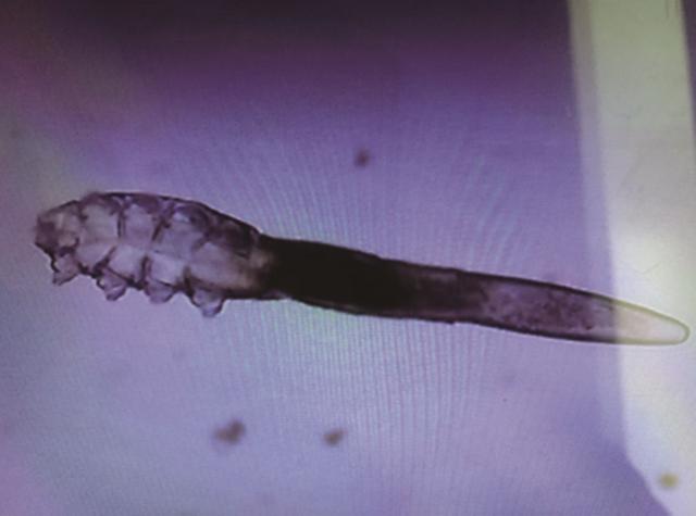 (醫生檢查發現陳小姐的睫毛根部長滿蠕形蟎蟲,翻攝自中媒)