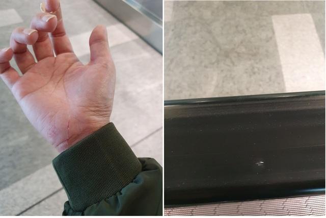網友搭手扶梯被針劃傷。(翻攝自PTT)