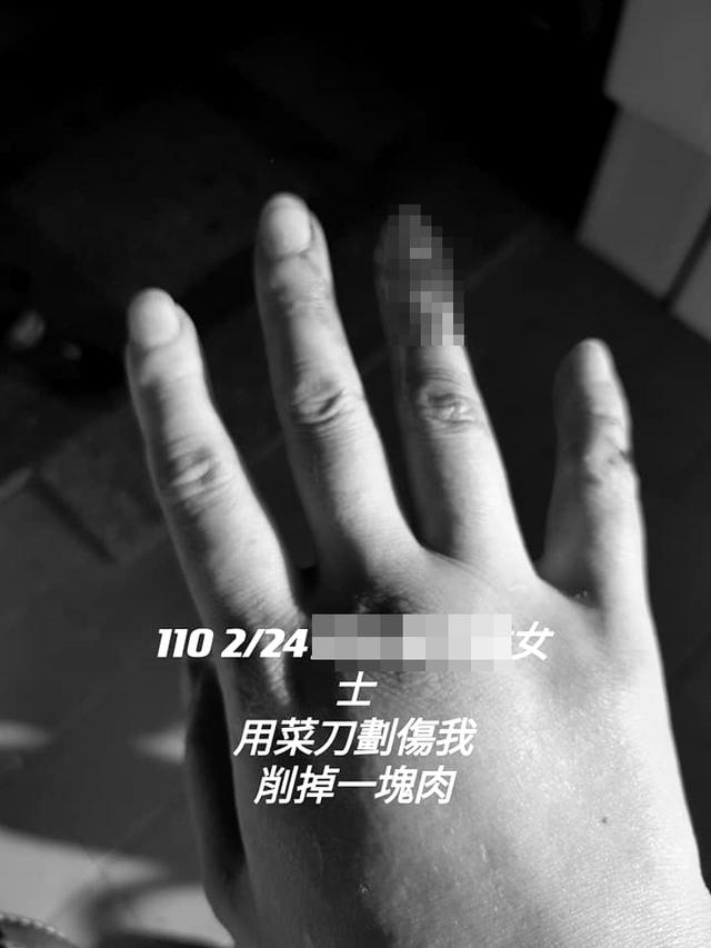 網友貼出被菜刀割傷照片。(翻攝自臉書爆料公社二社)